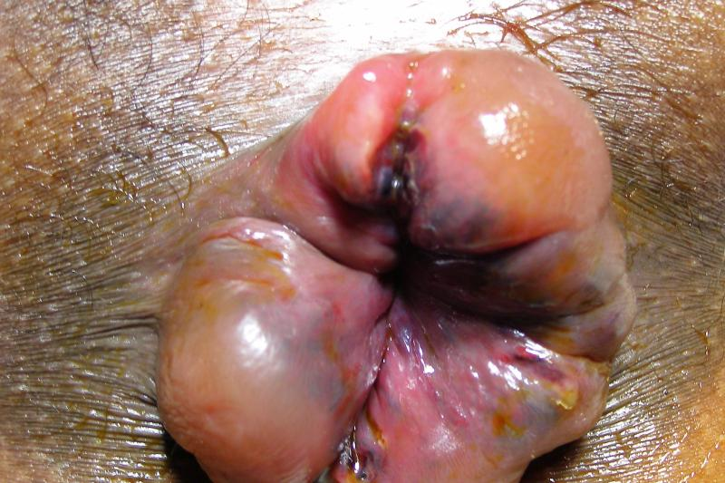 Std from anal